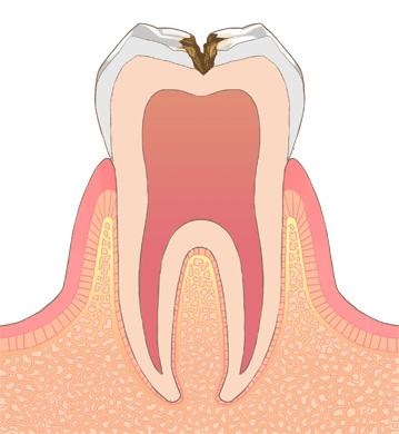 象牙質う蝕