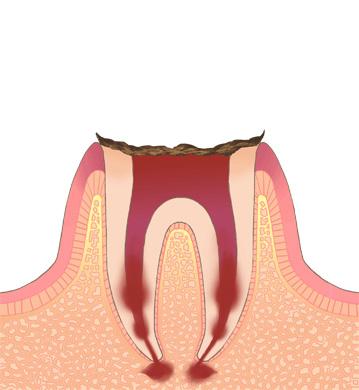 残痕状態のむし歯